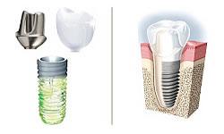 Studio Dentistico Barbero - Impianti Straumann