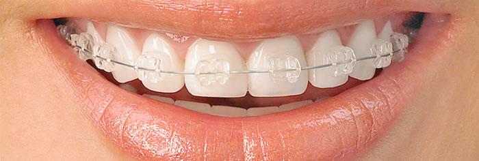 Studio Dentistico Barbero - Ortodonzia